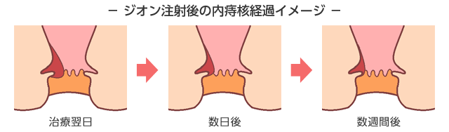 ジオン注射後の内痔核経過イメージ