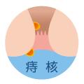 痔核(いぼ痔)とは痔核の手術