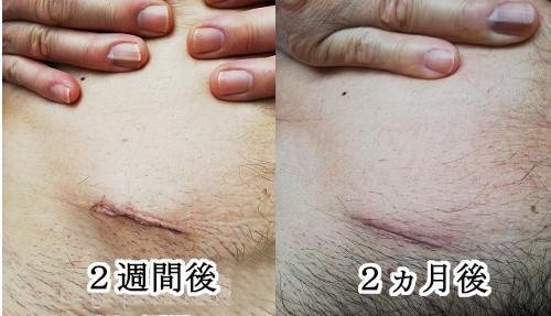後 虫垂炎 手術