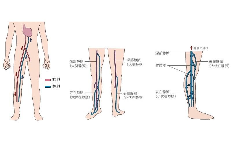 下肢静脈瘤 新宿外科クリニック