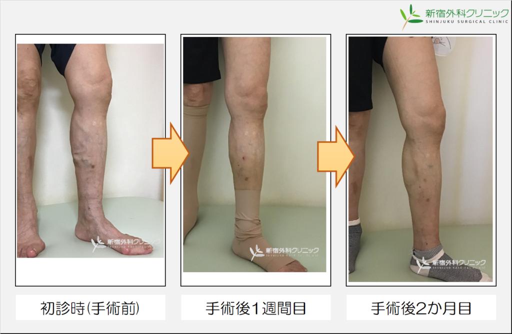 新宿外科クリニック 下肢静脈瘤