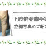 下肢静脈瘤 症例 術後