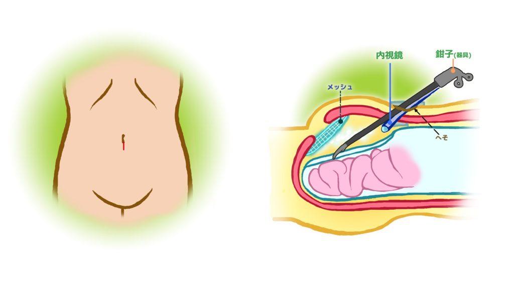 新宿外科クリニックでの鼠径ヘルニア手術の傷跡とは(内視鏡)