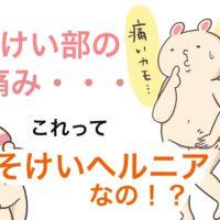 足の付け根、下腹部の膨らみは鼠径部。鼠径部の痛みは鼠径ヘルニア?